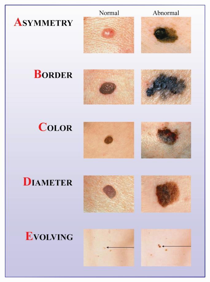Melanoma - kaip atpazinti